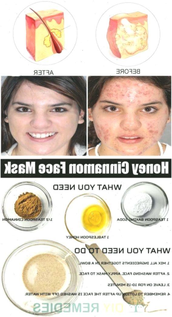 Gesichtsmaske selber machen – DIY Kosmetik Rezepte gegen unreine Haut #DIYBeau…