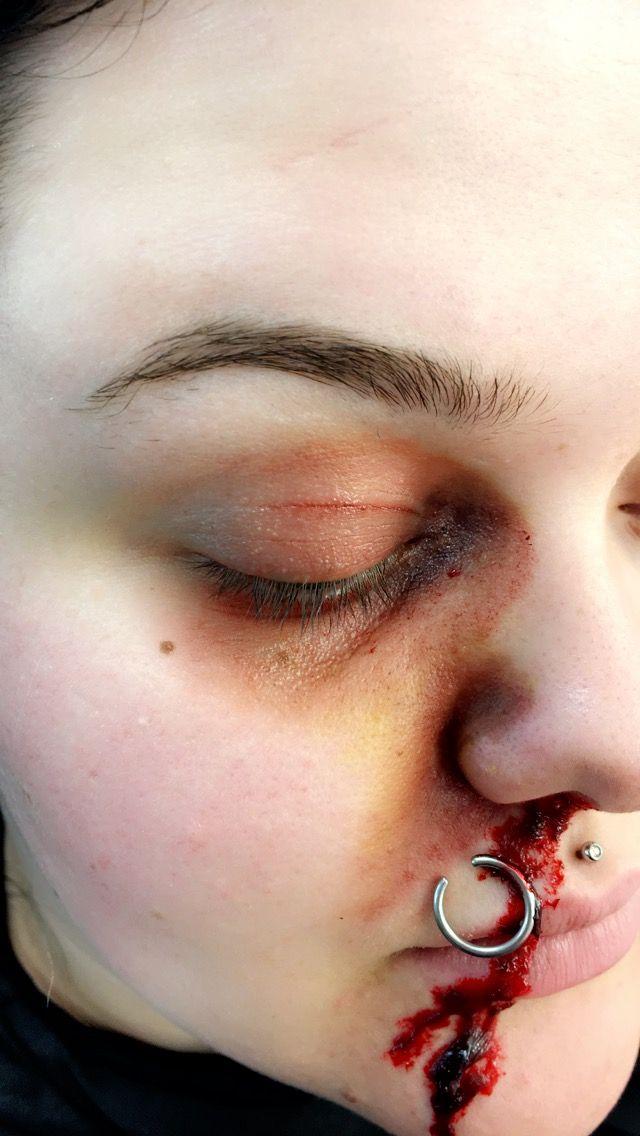 Bruise Recreation And Torn Septum Makeup By Chloe Harris Instagram