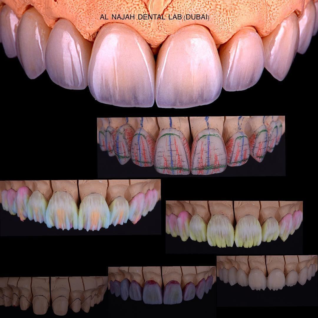 Net Opisaniya Foto Dental Art Dental Ceramics Dental