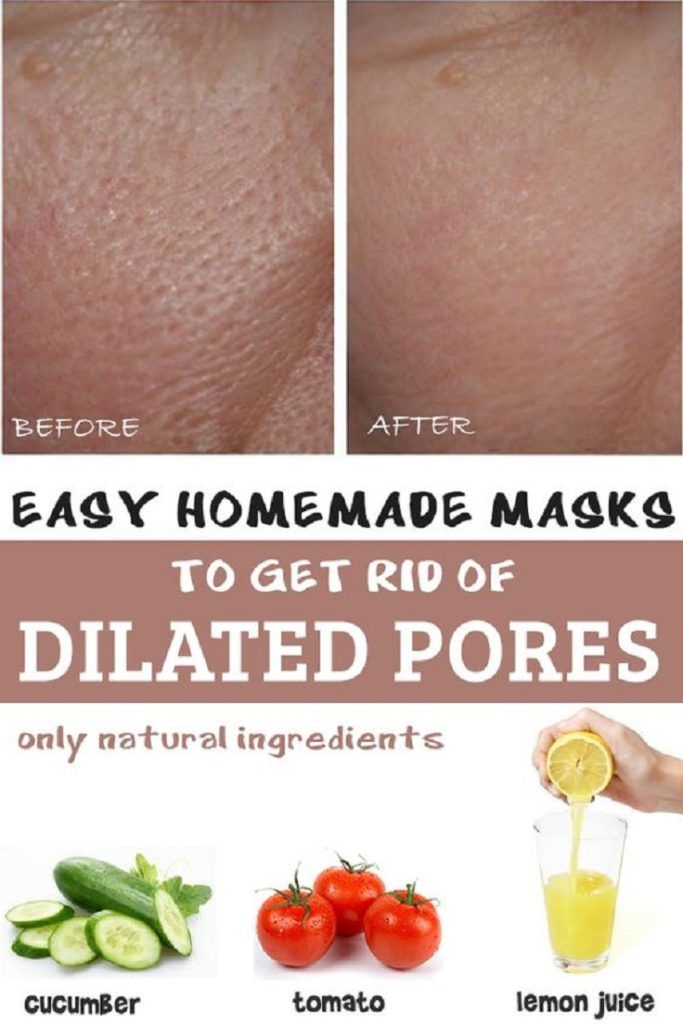 Homemade skin care how to get rid
