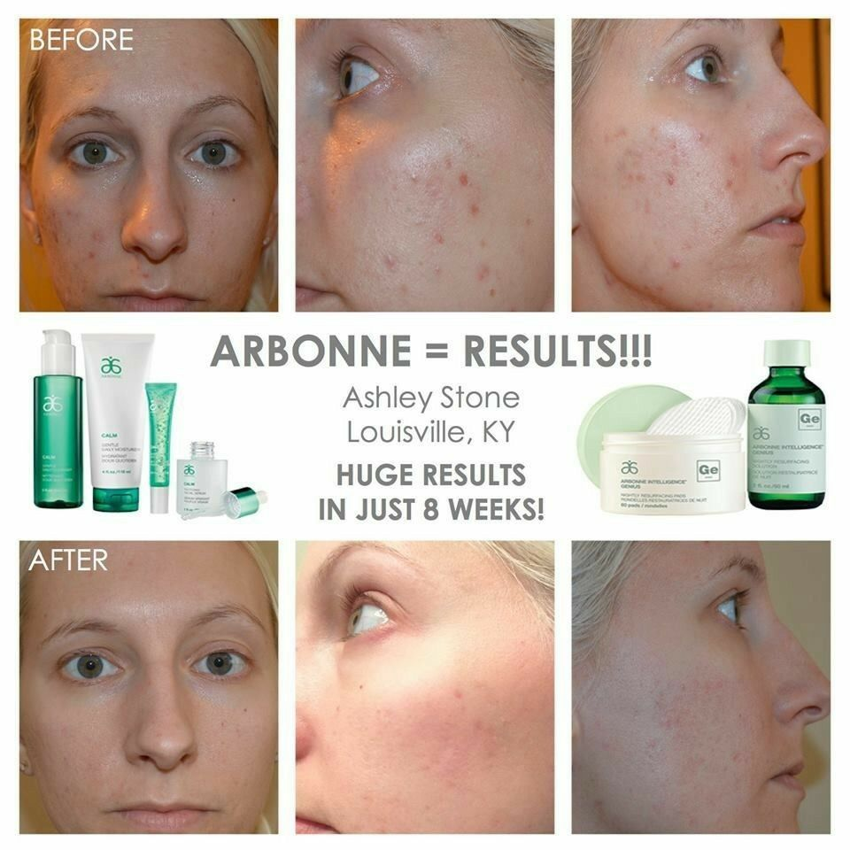 Before After Results In Just 8 Weeks By Using The Calm Line And The Genius Ultra Resurfacing Pads Arbonne Arbonne Skin Care Acne