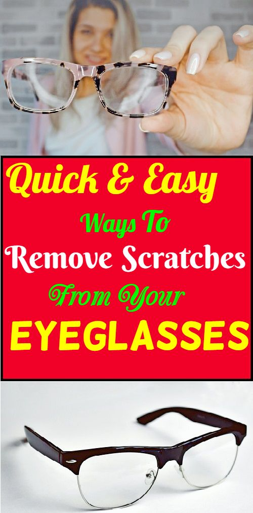 34855b9e02be9b3a111c2637cf1c8d8c - How To Get Rid Of Scratches On Your Body