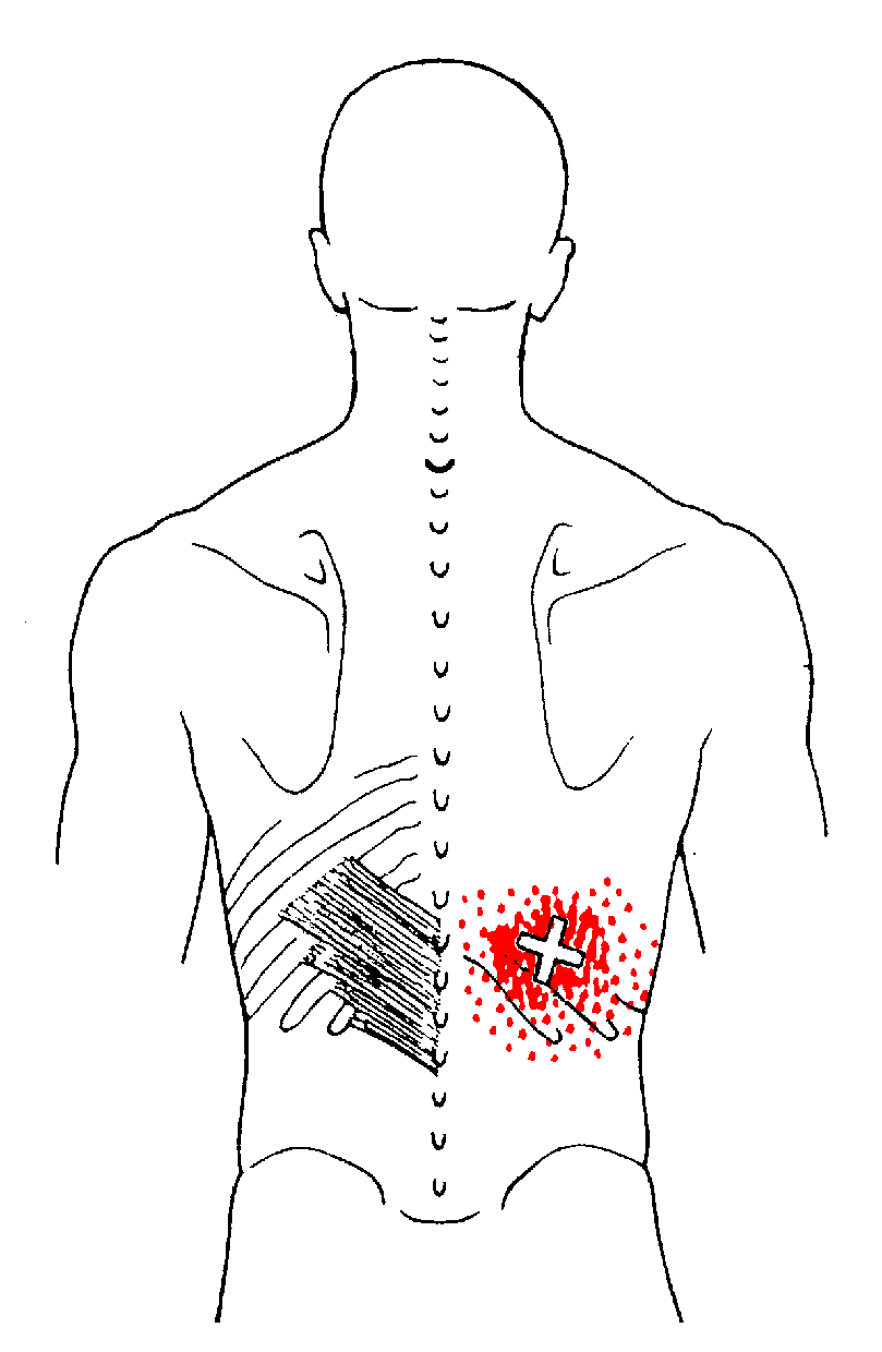 Serratus Posterior Inferior The Trigger Point Amp Referred