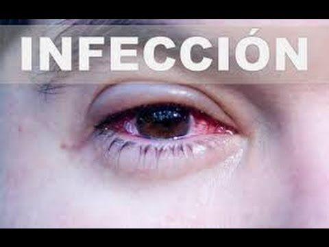imagenes de infeccion de ojos