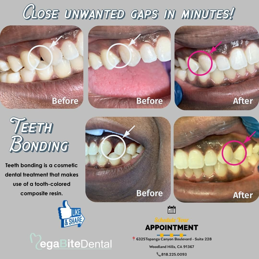 Close unwanted gaps in minutes! ⠀ Dental bonding, or