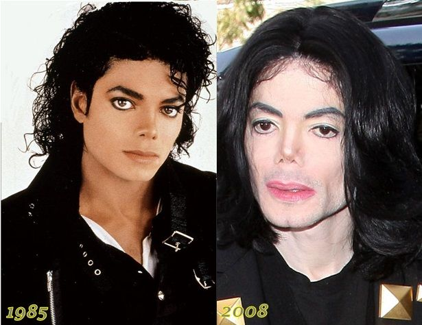 19 Celebs That Destroyed Their Face With Plastic Surgery ...