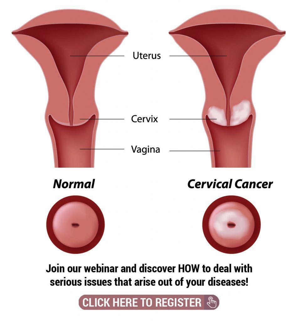 human papillomavirus colon cancer)