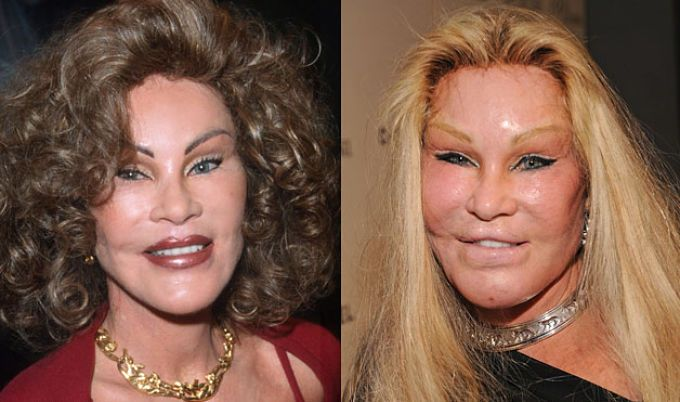 Everyone wants to look their best, but is this the answer to eternal youth? Check out what happened to these #celebs who took #plastic #surgery too far! http://www.maxviral.com/celebrity/top-7-failed-celeb-plastic-surgeries/
