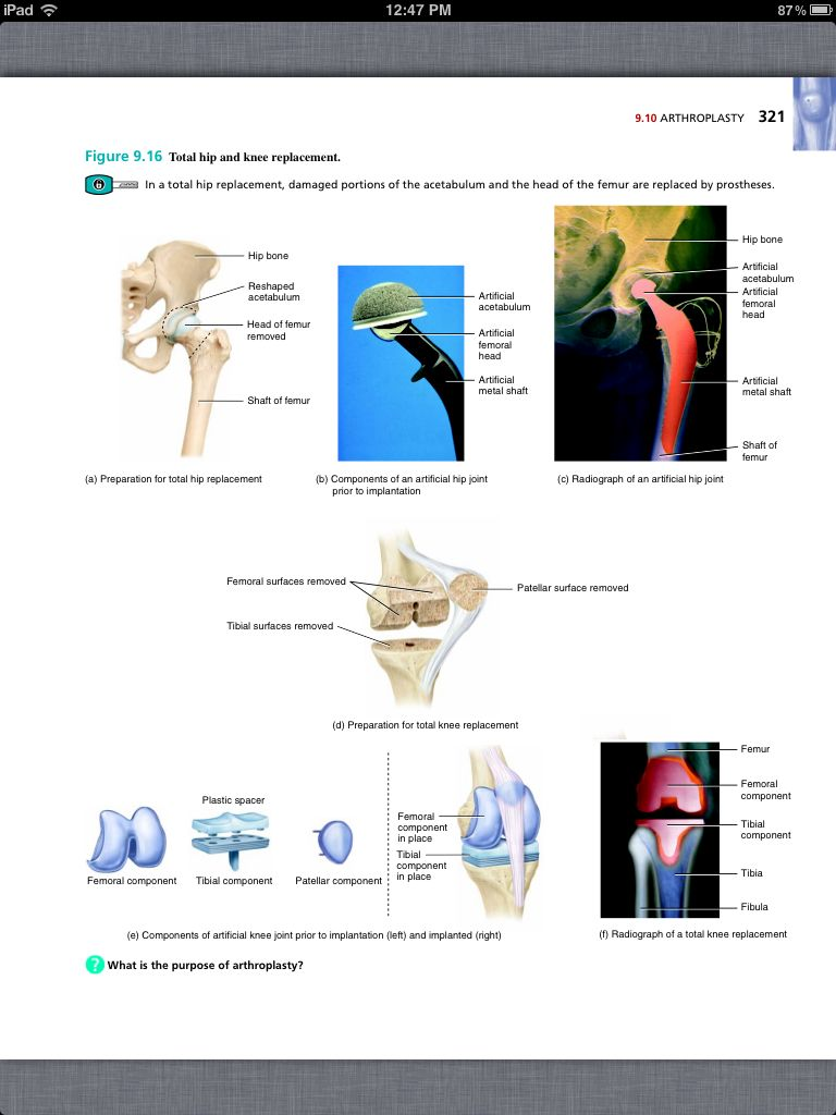Principles of Anatomy and Physiology, Chapter 9, Joints, 33, book pg ...