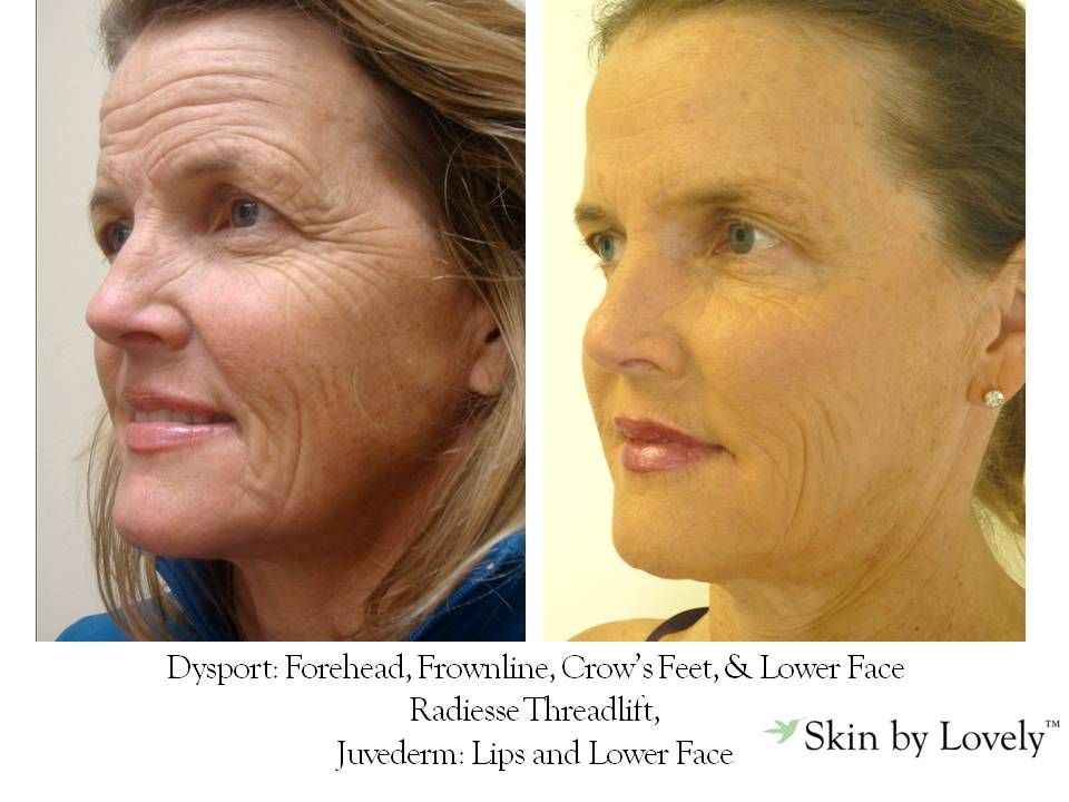 Dysport: Forehead, Frownline, Crow's Feet & Lower Face