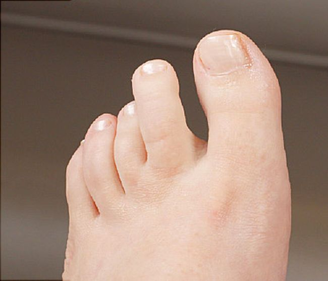 Ingrown toenails happen when your nail grows into your skin instead ...