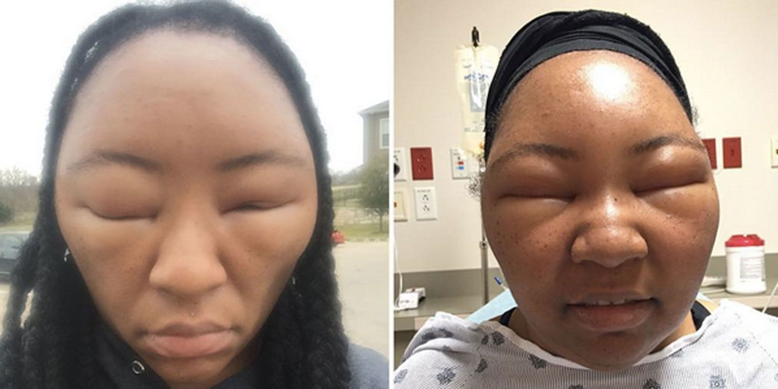 Health Vlogger Shares Photos After Scary Allergic Reaction To