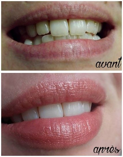 Comment Avoir Les Dents Blanches Instantan駑ent