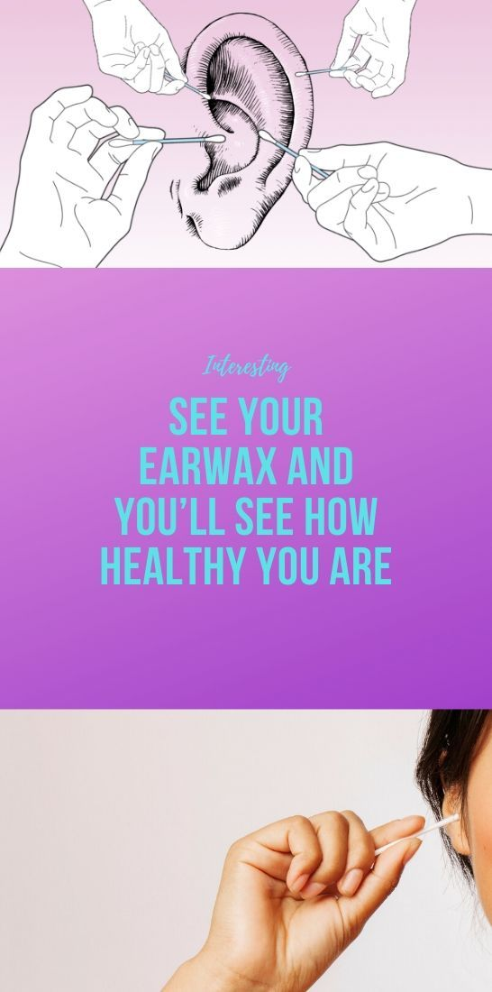 Photo of See Your Earwax And You'll See How Healthy You Are