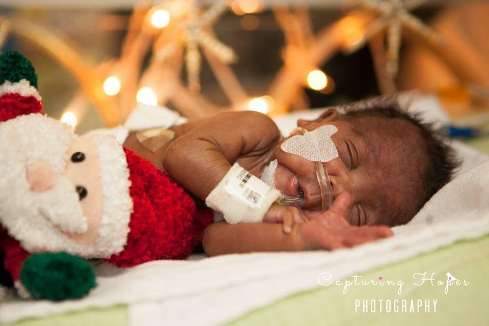 premature preemie newborn nicu