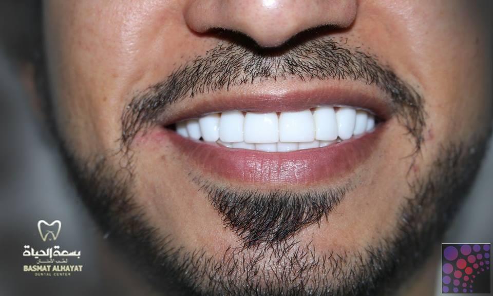 تنظيف الاسنان بسعر مناسب فى الشارقة Teeth Cleaning Health Beauty Dental