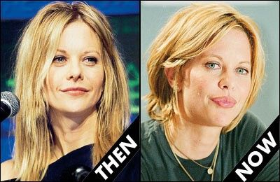 Meg Ryan Plastic Surgery Before And After Pictures Plastic