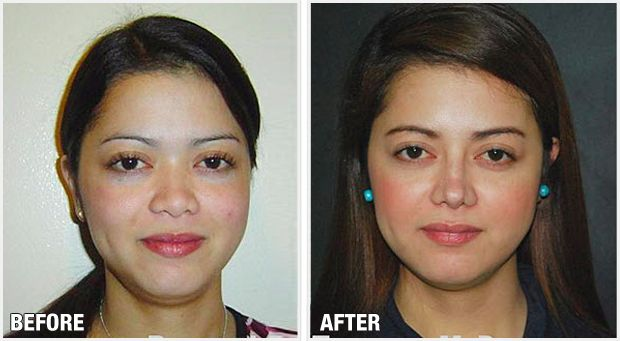 Rhinoplasty Philippines By Dr Raynald Torres – Fondos de Pantalla