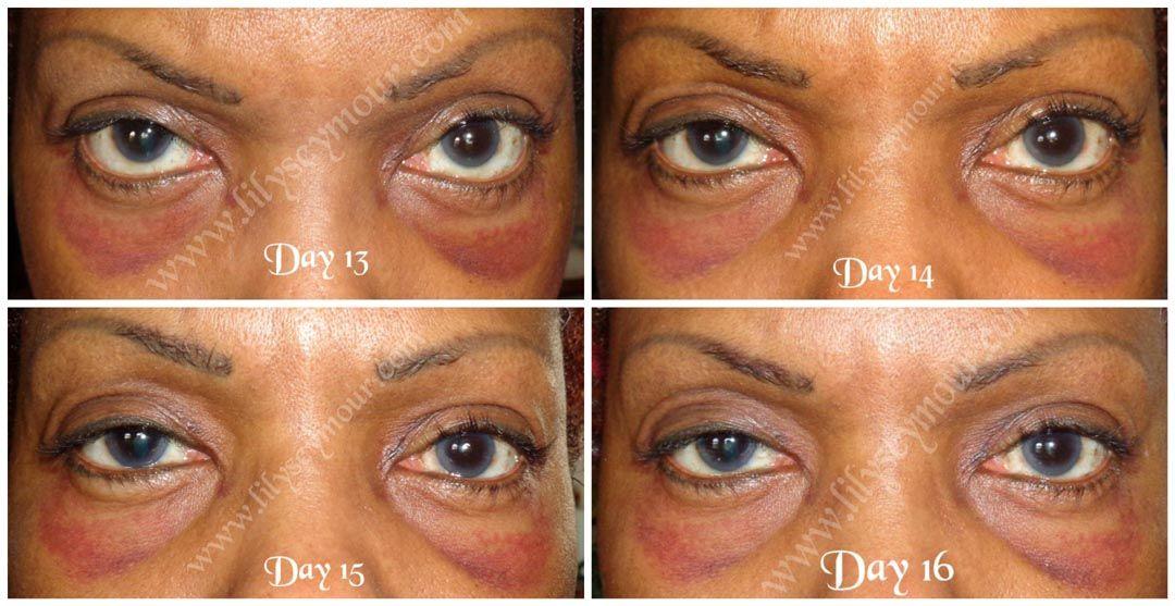 Pin On Blepharoplasty Eyelid Surgery