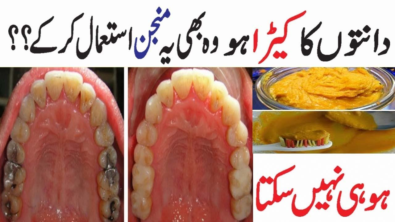 How To Whiten Teeth At Home In One Day In Hindi Beauty News