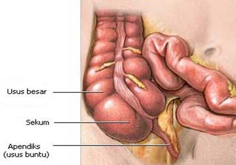 Usus Buntu Adalah Kantung Yang Terhubung Pada Bagian Usus Besar Sistem Pencernaan Anatomi Manusia Gigi Bungsu