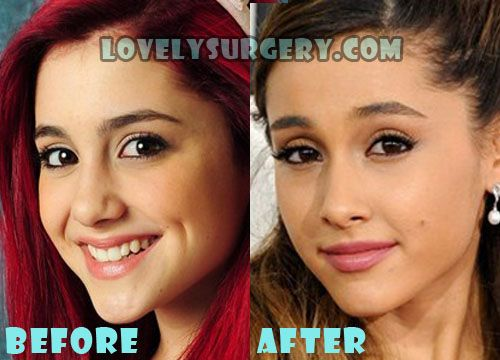 Ariana Grande Plastic Surgery Before and After Nose Job - Lovely Surgery | Celebrity Before and After Picture