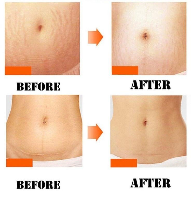 How to get rid of stretch marks and prevent them forever