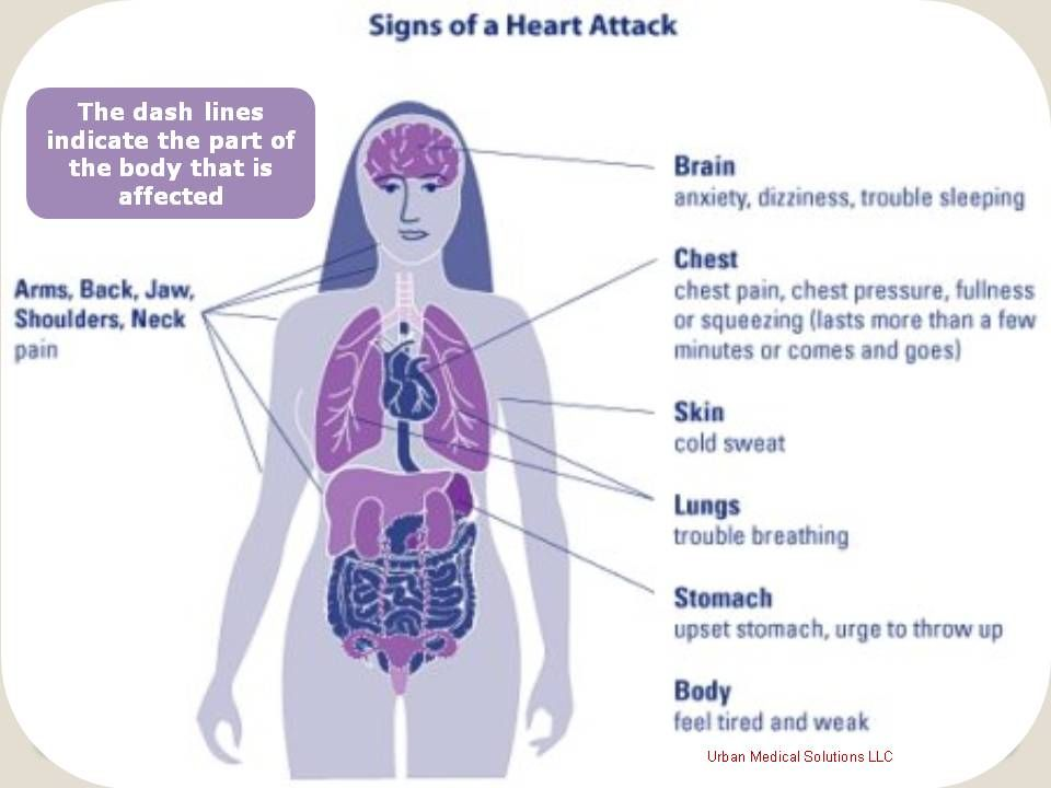 Heart attack symptoms woman health education by urban medical heart attack symptoms woman ccuart Images
