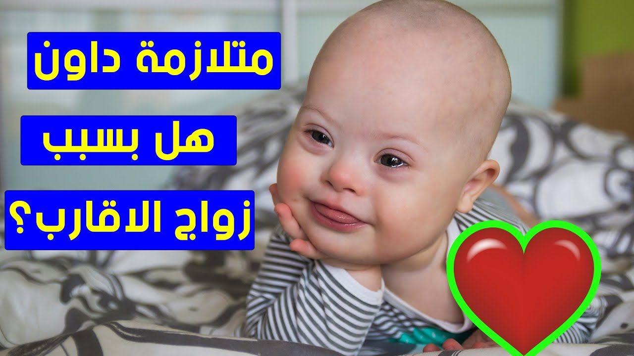 متلازمة داون هل هي بسبب زواج الاقارب وهل مصابي متلازمة داون يتزوجون Parenting Hacks Parenting Baby Face