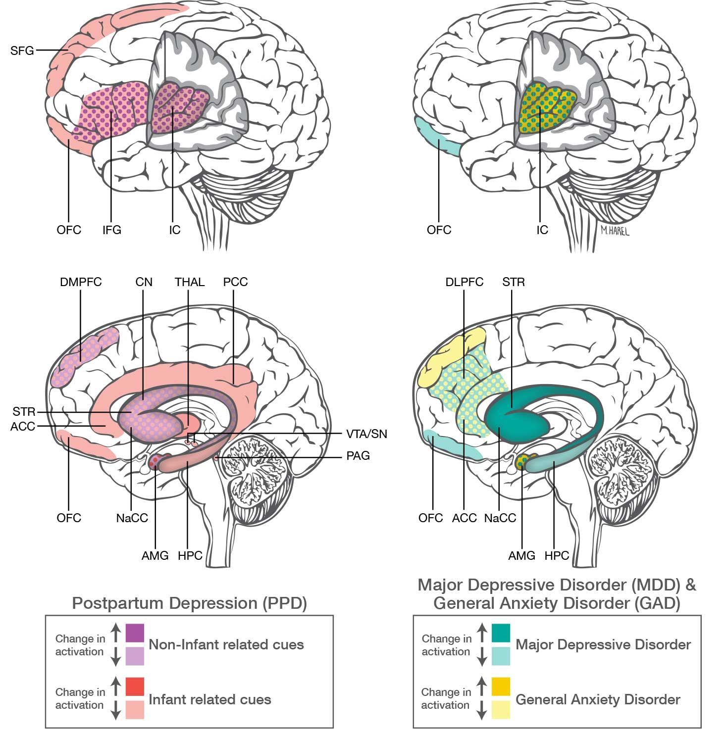 Postpartum Depression And Anxiety Distinct From Other Mood