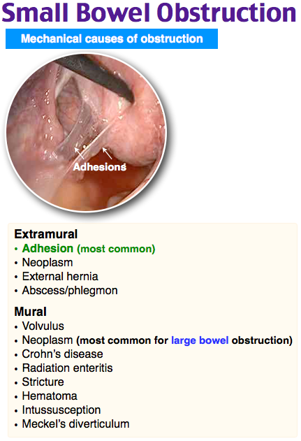 Rosh Review Bowel obstruction, Small bowel obstruction