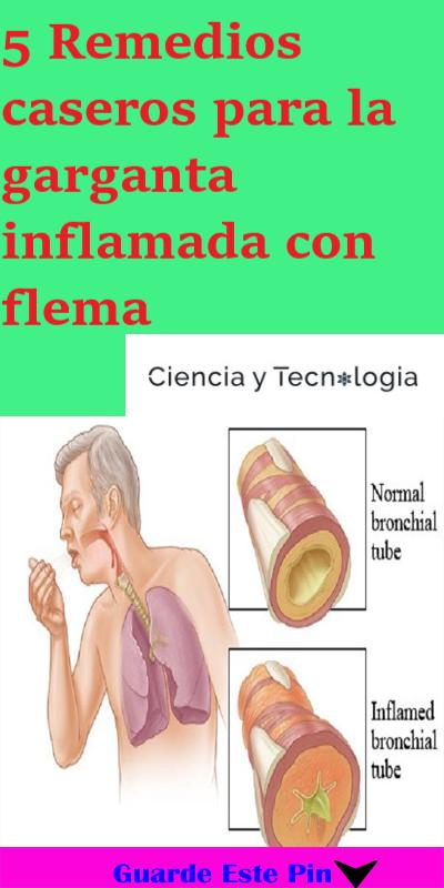 5 Remedios Caseros Para La Garganta Inflamada Con Flema Remedios Caseros Remedios Caseros Naturales Remedios