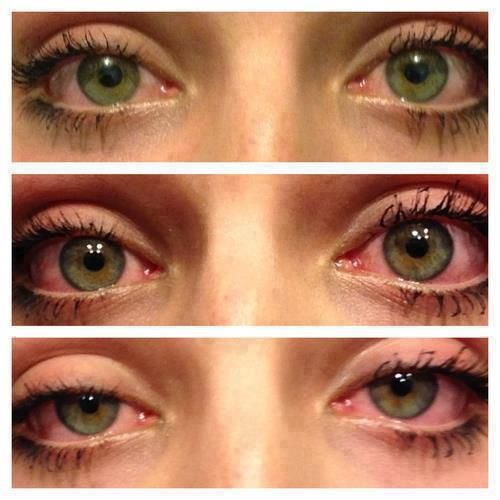 Red Eyes From Smoking Weed