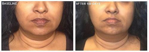 Anti Aging Cream Before And After Antiagingdrinks Cellulitetreatmentatlanta Homemade Acne Treatment Laser Treatment Facial Treatment