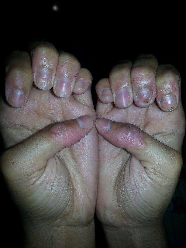 I always bite my nails and now that I\'ve stopped they look terrible ...