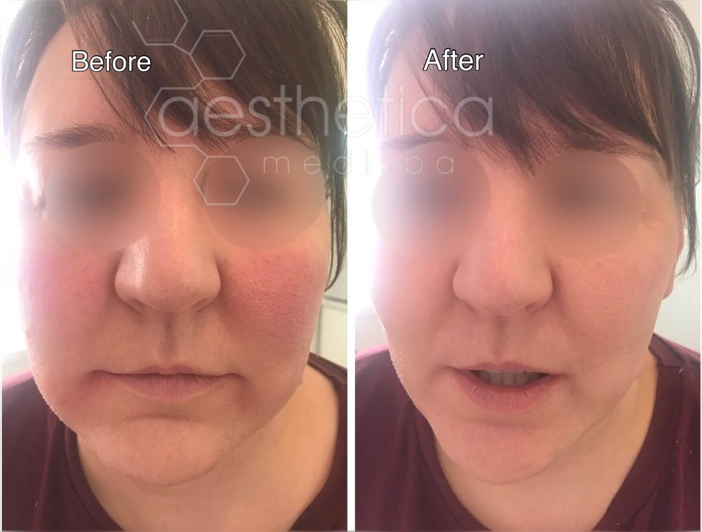 Cheek Enhancements can treat a multitude of areas   www