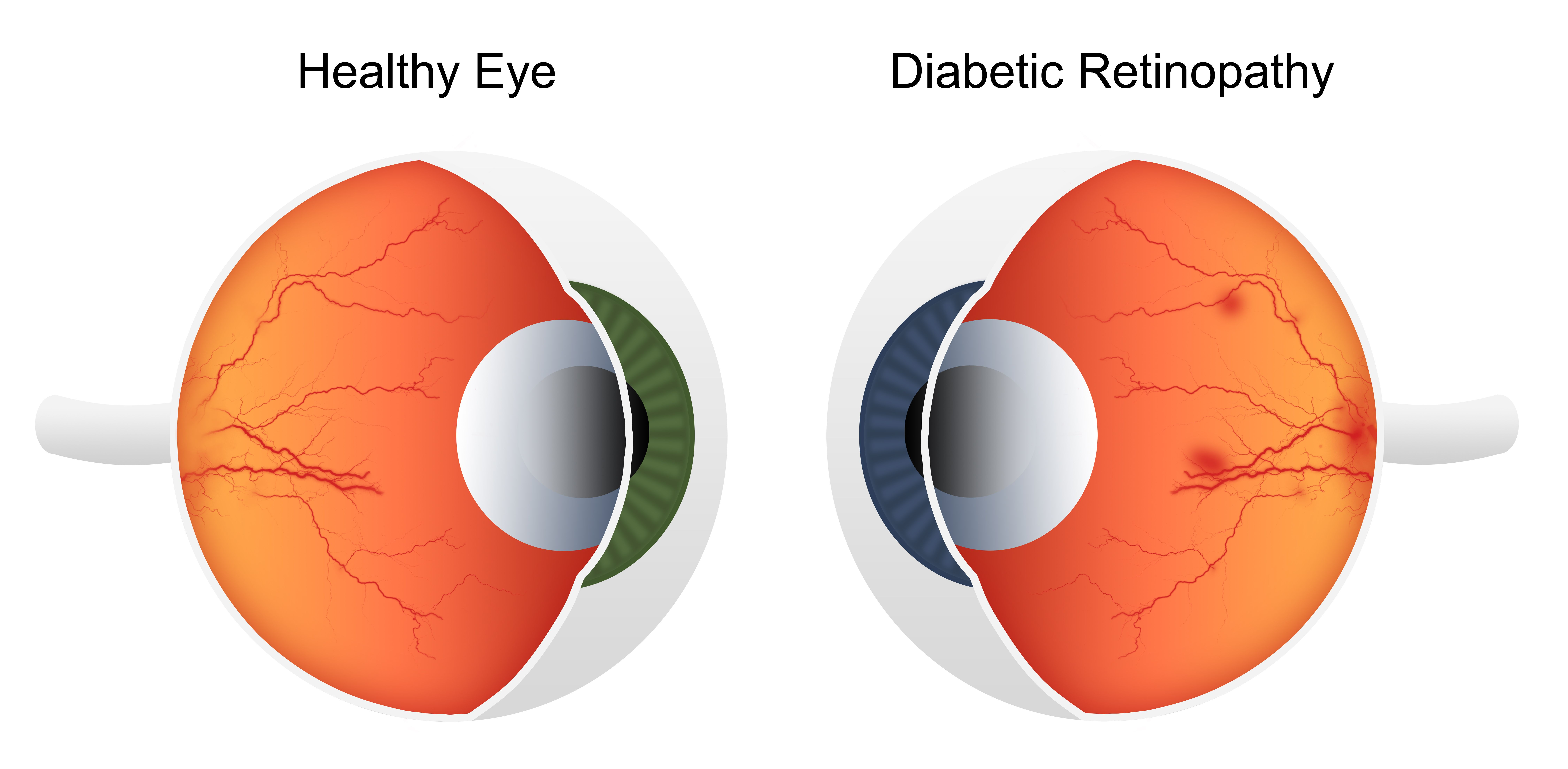 can a ketogenic diet reverse retinopathy