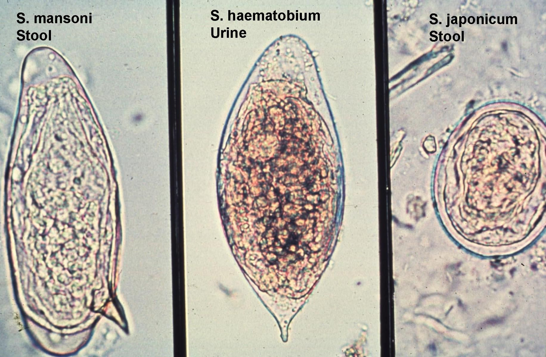 Schistosomiasis eggs in stool