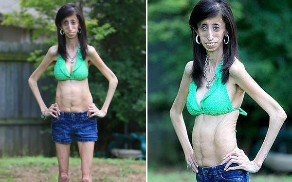 Skinniest Person in the World - Lizzie Velasquez ...