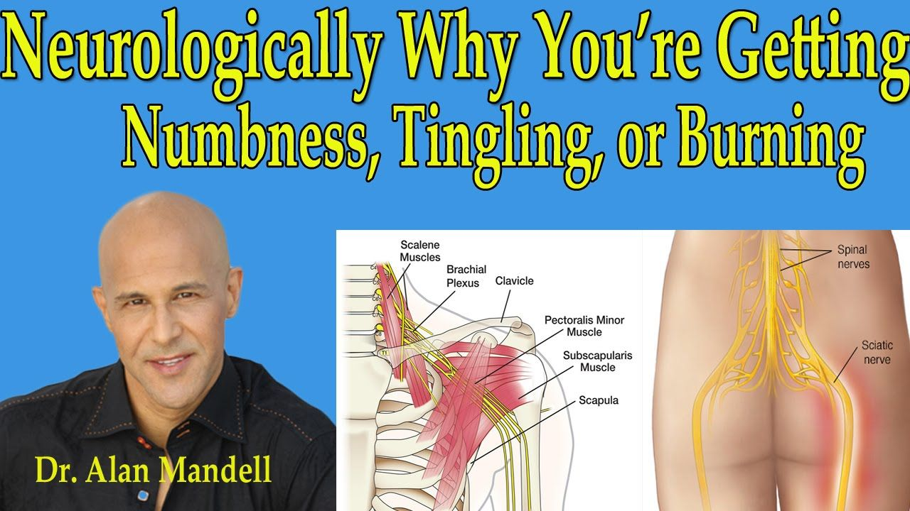 Numbness of the left arm