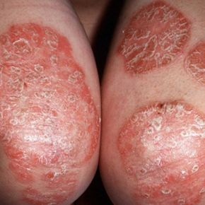 Effective Home Remedies For Psoriasis - How To Treat Psoriasis   Home Remedies, Natural Remedy