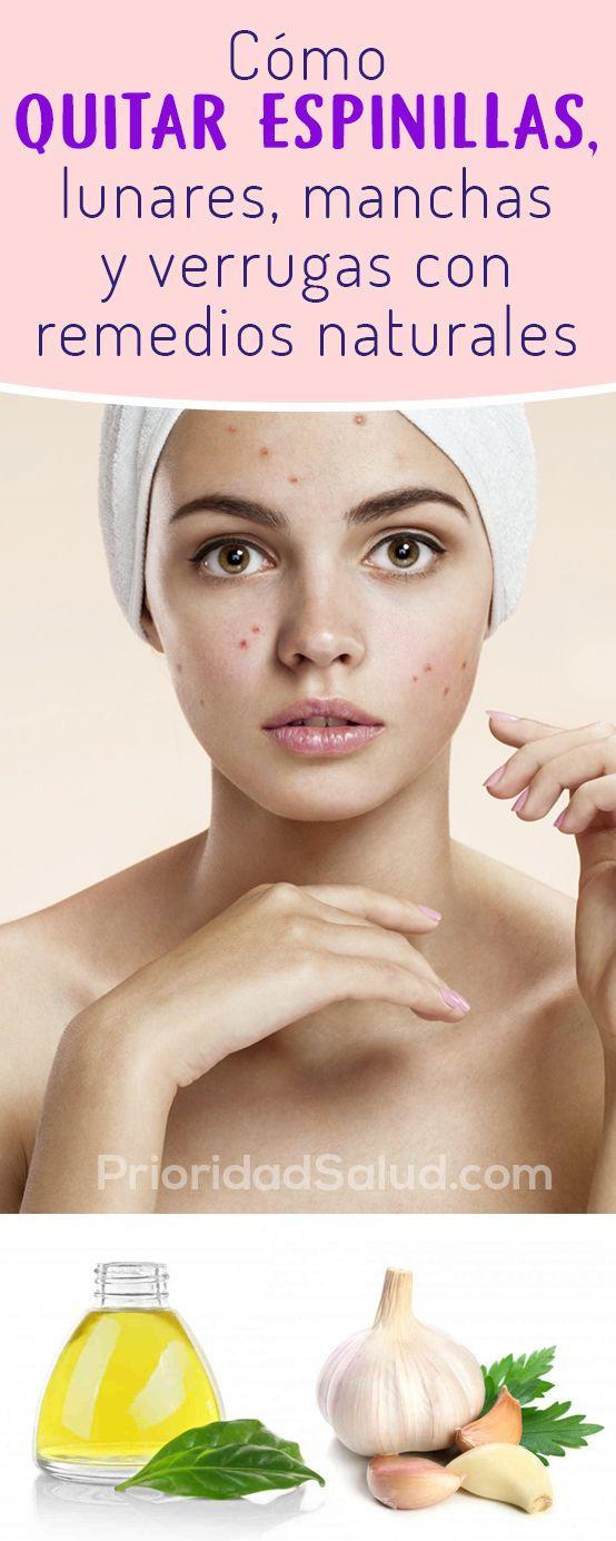 12 Remedios Naturales Pregnancy Eludir Las Manchas De Solfa Syllable Piel Remedios Caseros Para Quitar Manchas De La Cara