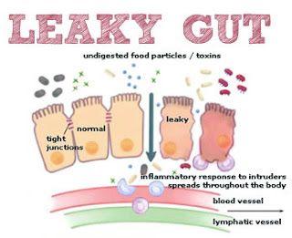http://www.leakygutcurereview.org/celiacdisease-symptoms.html - Muscle Gaining Secrets: Celiac Disease Symptoms and Diagnosis
