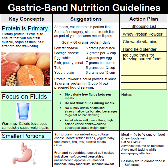 Gastric Band Nutrition Guidelines Gastric Sleeve How To Wear It Well