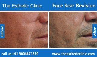Scar revision treatmentfacial scar removal before after photos in scar revision treatmentfacial scar removal before after photos in mumbai india sciox Image collections
