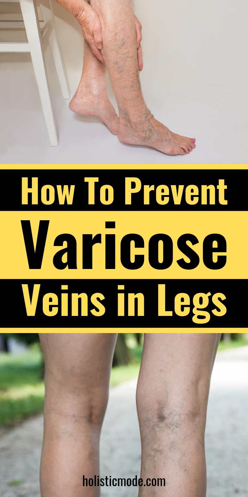 Pin on Varicose Veins Treatment, How to Get Rid of