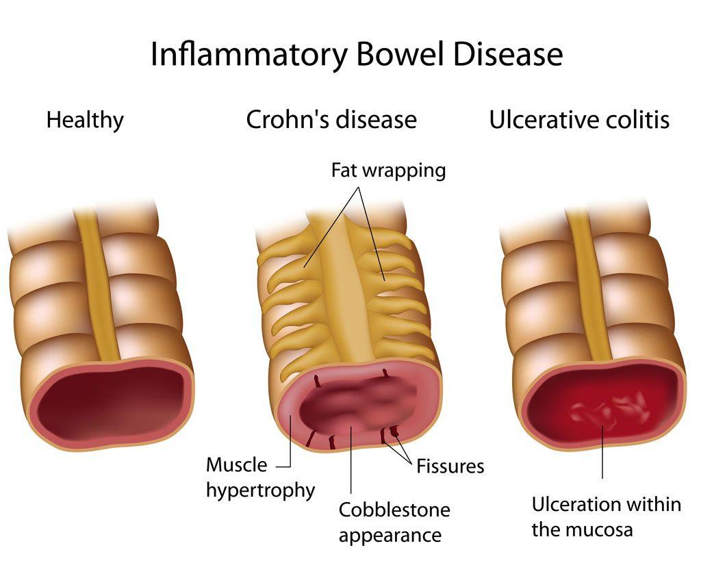Inflammatory Bowel Disease Ibd Is Used To Identify Two