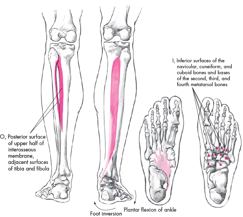 Tibialis Posterior Insertion Tibialis Posterior Tendon Insertion ...
