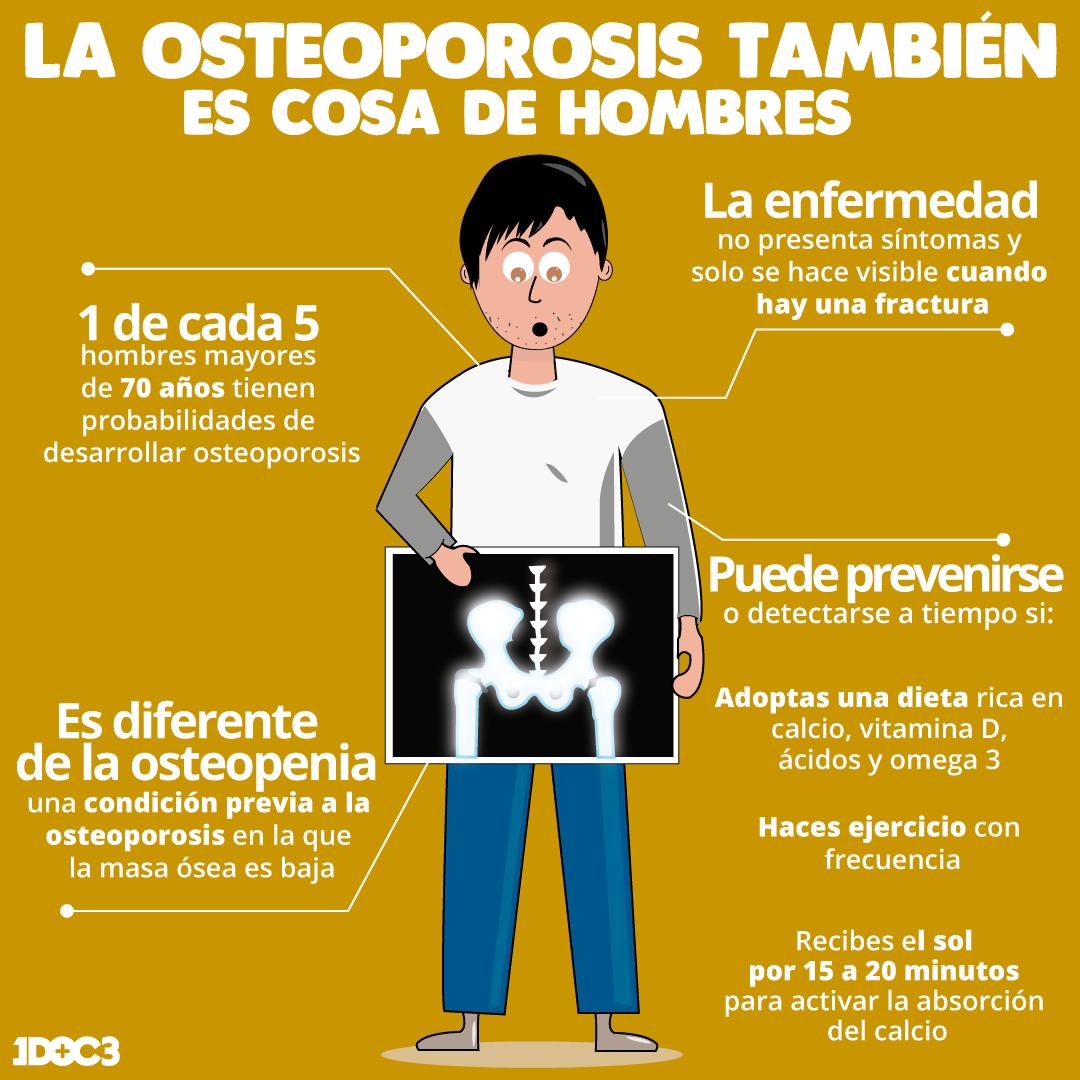 35++ Se puede mejorar la osteoporosis viral