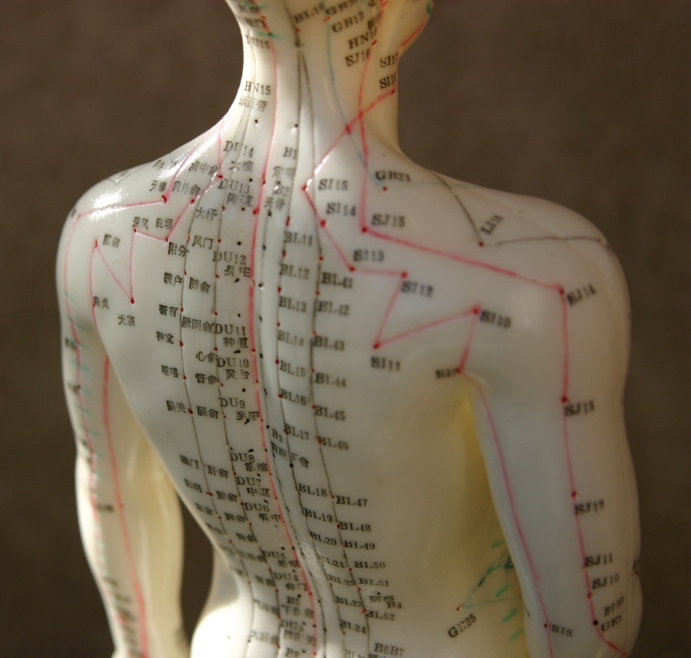 EDS and acupunture